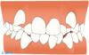 叢生(八重歯、ガタガタの歯並び)