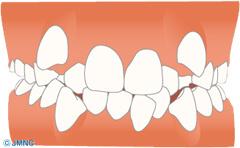 叢生 (八重歯、ガタガタの歯並び)