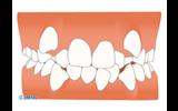 歯がガタガタ…