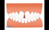 歯に隙間が…